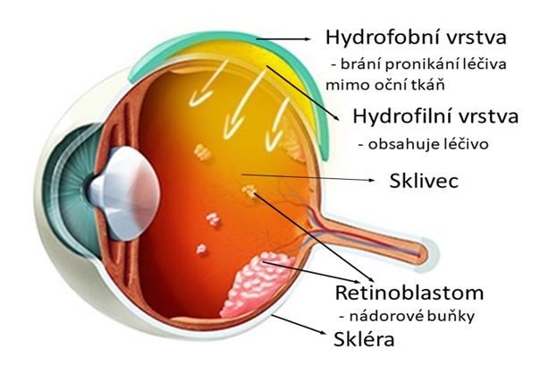 Hydrogelový implantát pro aplikaci protinádorových léčiv do zadního očního segmentu