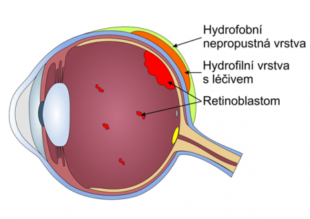 Nové způsoby aplikace protinádorových léčiv při léčbě očního zhoubného nádoru - retinoblastomu