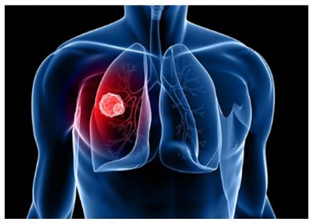 Podpora nového léčiva pro boj s rakovinou